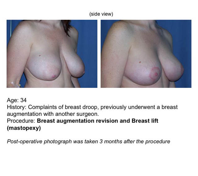 University hospial cleveland breast lift