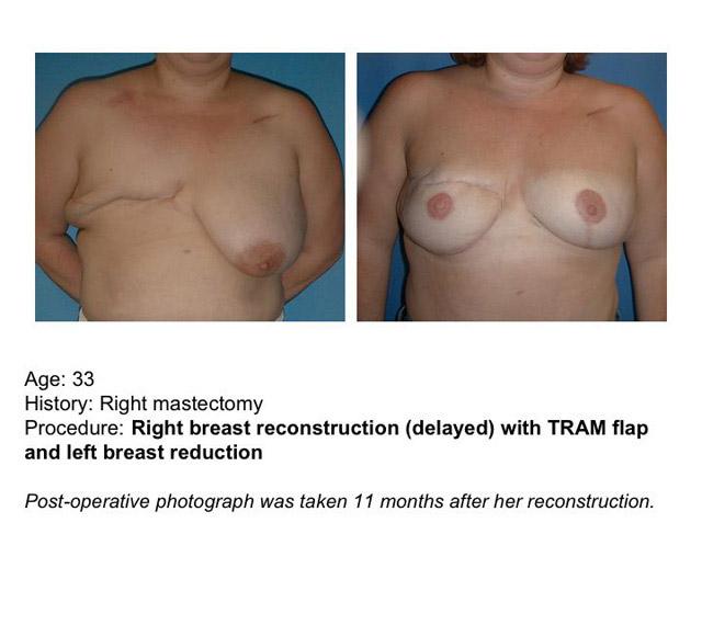 Breast Reconstruction Susan G Komen