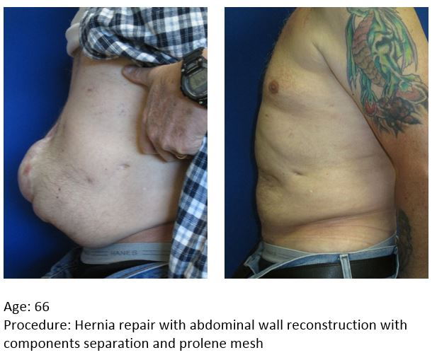 Abdominal Wall Reconstruction » UF Health Plastic Surgery and ...