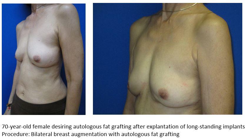 Breast Implants - WebMD - Better information Better health