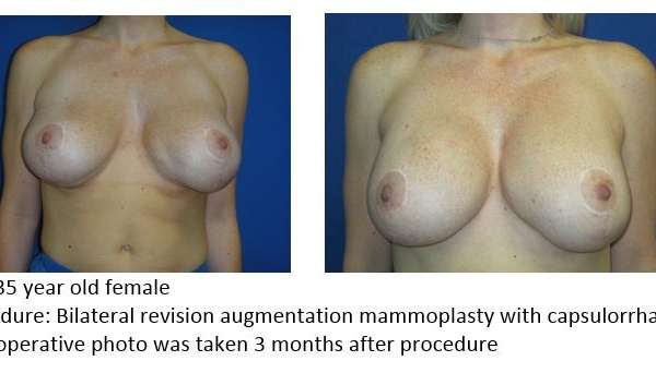Mast Revision Augmentation