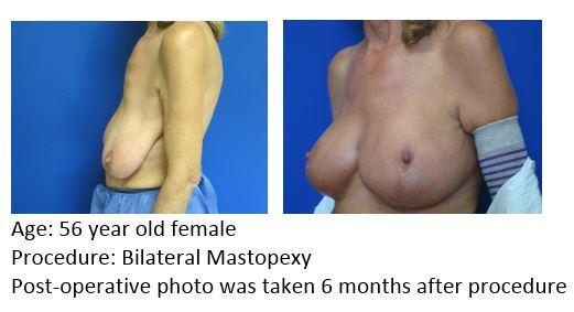 Mast Mastopexy