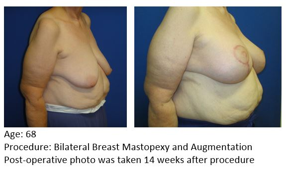 Mast Mastopexy and Augment