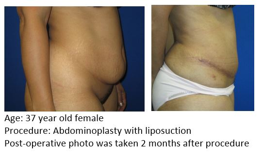 Mast Abdominoplasty