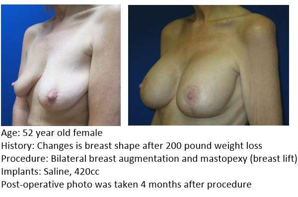 Mastopexy/Augmentation