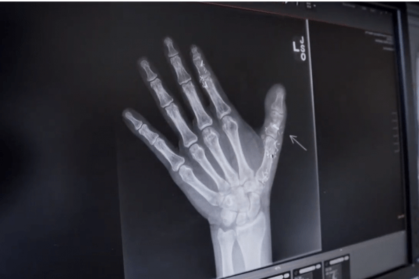 James Eisel's Hand