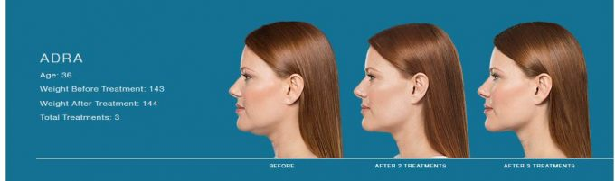 Adra's before and after shots receiving Kybella, an injectable. Kybella has destroyed fall cells under her chin.
