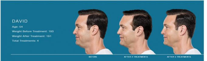 David's before and after shots receiving Kybella, an injectable. Kybella has destroyed fall cells under his chin.
